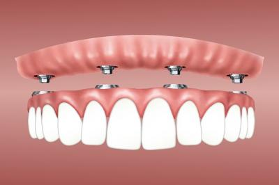 implant dentaire 95